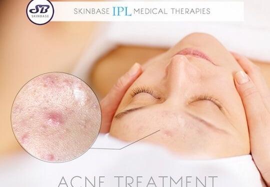 How IPL treats acne