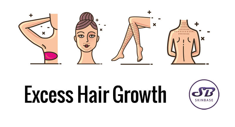 Excess hair growth