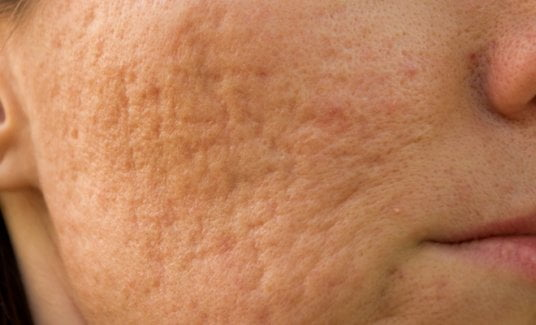 acne sufferers
