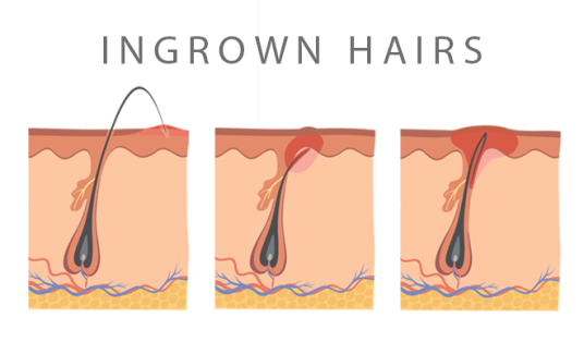 ingrown hairs