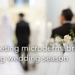 Marketing Microdermabrasion during wedding season